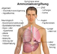 Ammoniakforgiftning